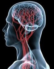 brain_vascular_web300x386